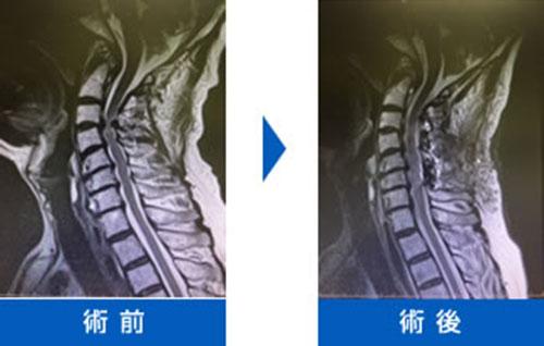 頚椎症と頚髄症(頚椎症性脊髄症)画像