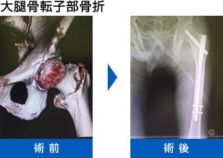大腿骨頚部骨折 と 大腿骨転子部骨折画像