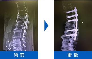 胸腰椎の椎体骨折(圧迫骨折)画像