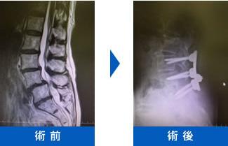 腰部脊柱管狭窄症画像